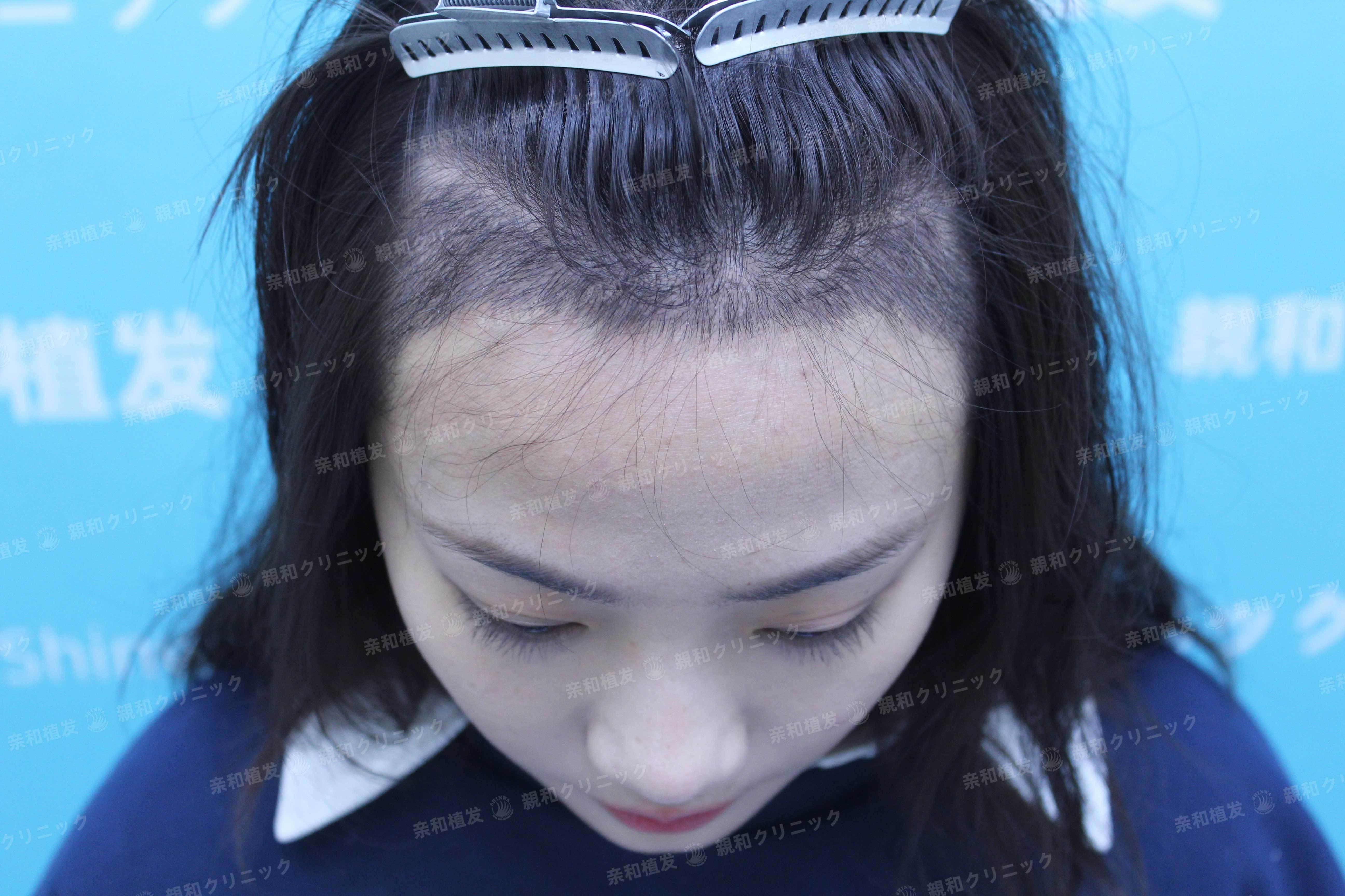 发际线调整 项目分类:植发养发 植发 种植发际线