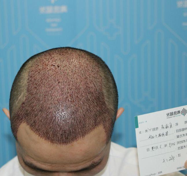 头顶加密+下调发迹线 项目分类:植发养发 植发 头顶加密种植