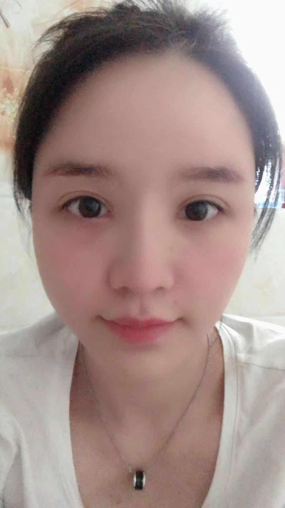 刘志刚重睑修复术+内眦修复术 项目分类:眼部整形 眼部修复