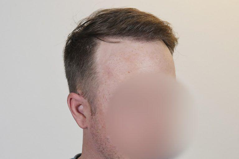 沃克植发 项目分类:植发养发 植发 头顶加密种植