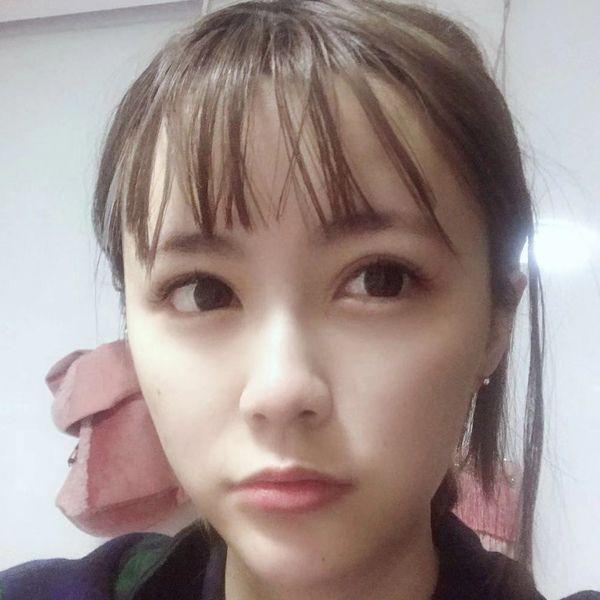 王玲-外眼角+眼睑下至 项目分类:眼部整形 下眼下至术 下睑整形