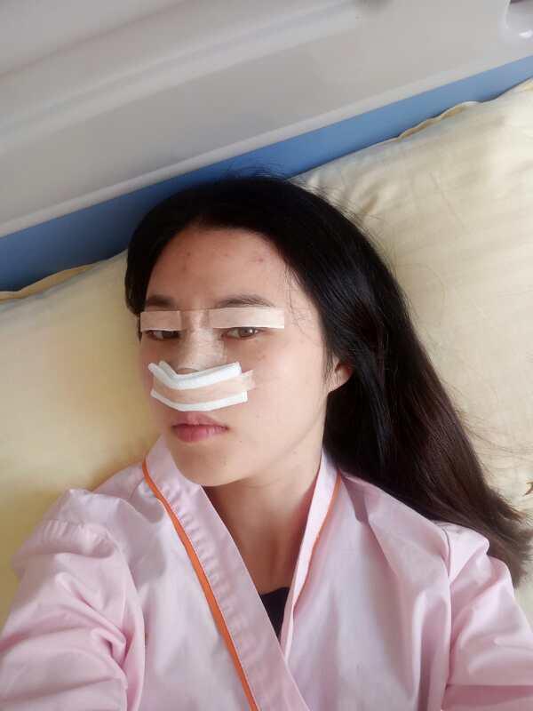 我是打算鼻子和眼睛一起做了,所以面诊时同时设定了眼部和鼻部方案,前面说道美杜莎美眼,这边我就介绍我的鼻部方案,我做的是bsk宫廷半肋隆鼻部多项,做的全麻,因为主任的手术排期这周都已排满,我只能安排到下周手术,后面面诊完交完费,就安排术前的常规体检,并告知,下周手术前至少6~8个小时内禁食禁水的,因为当天要做的是全麻术,如果没忍住吃了东西或是喝水,就没法手术,延误到下次才能做。医生这些方面讲的都很细致