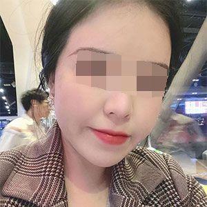 面部吸脂 项目分类:面部轮廓 瘦脸 面部吸脂