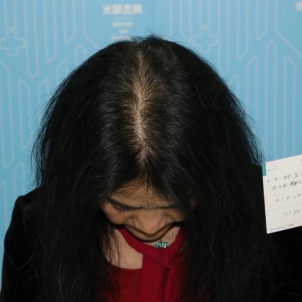 找回年轻的模样 项目分类:植发养发 植发 头顶加密种植