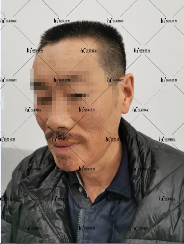 胡须种植后增加男人魅力 项目分类:植发养发 毛发检测