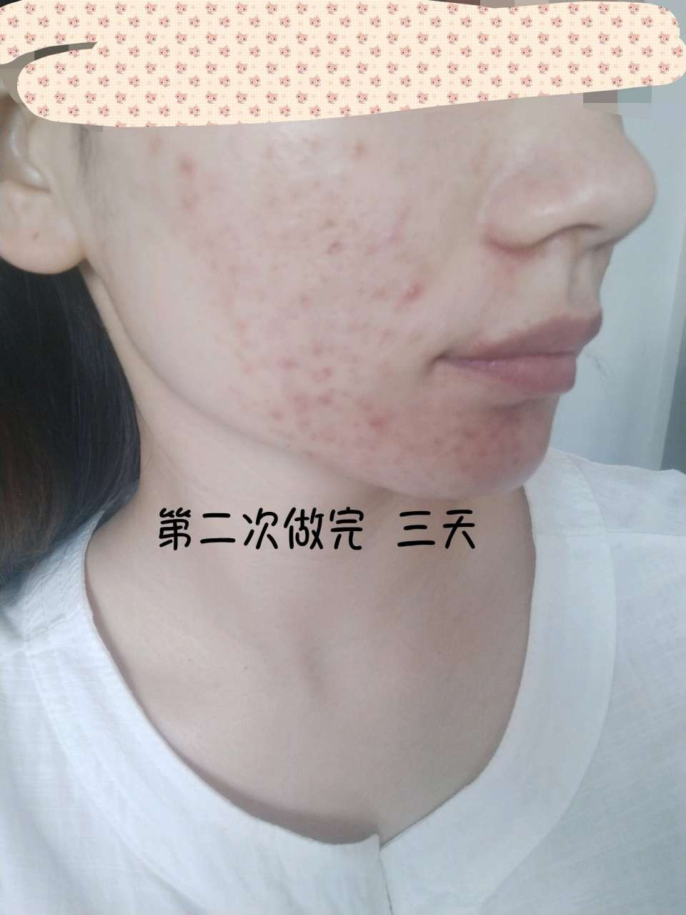 果酸焕肤 项目分类:皮肤管理 化学换肤 去痘印痘坑