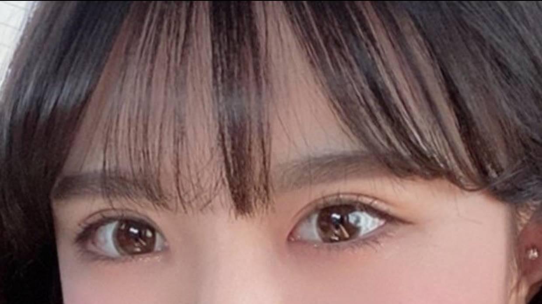 隐痕眼综合 项目分类:眼部整形 眼部综合