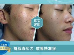 SOR索尔祛痘·面部肌肤管理的图片
