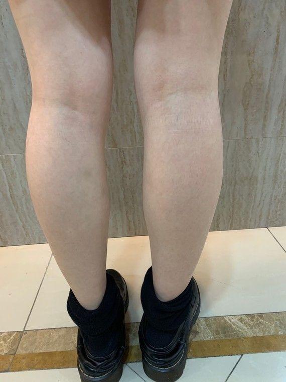 我是典型肌肉腿,又是懒得去锻炼运动的人,夏天穿超短裙子有点难看,而且很不美观,去面诊医生说我不适合做抽脂,而且还有恢复期和穿塑身裤,建议我打瘦腿针200~300单位,因为我没有打过,所以可以先打200单位,后期不够再补量