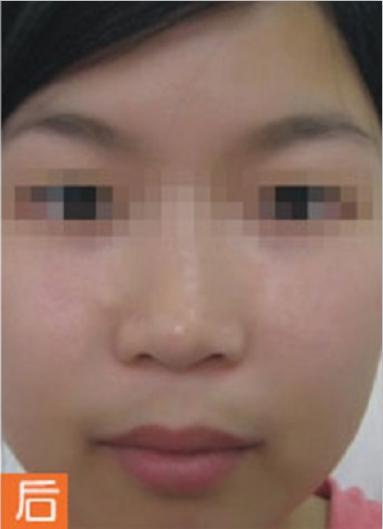 激光祛斑 项目分类:皮肤管理 祛斑祛痣 激光祛斑
