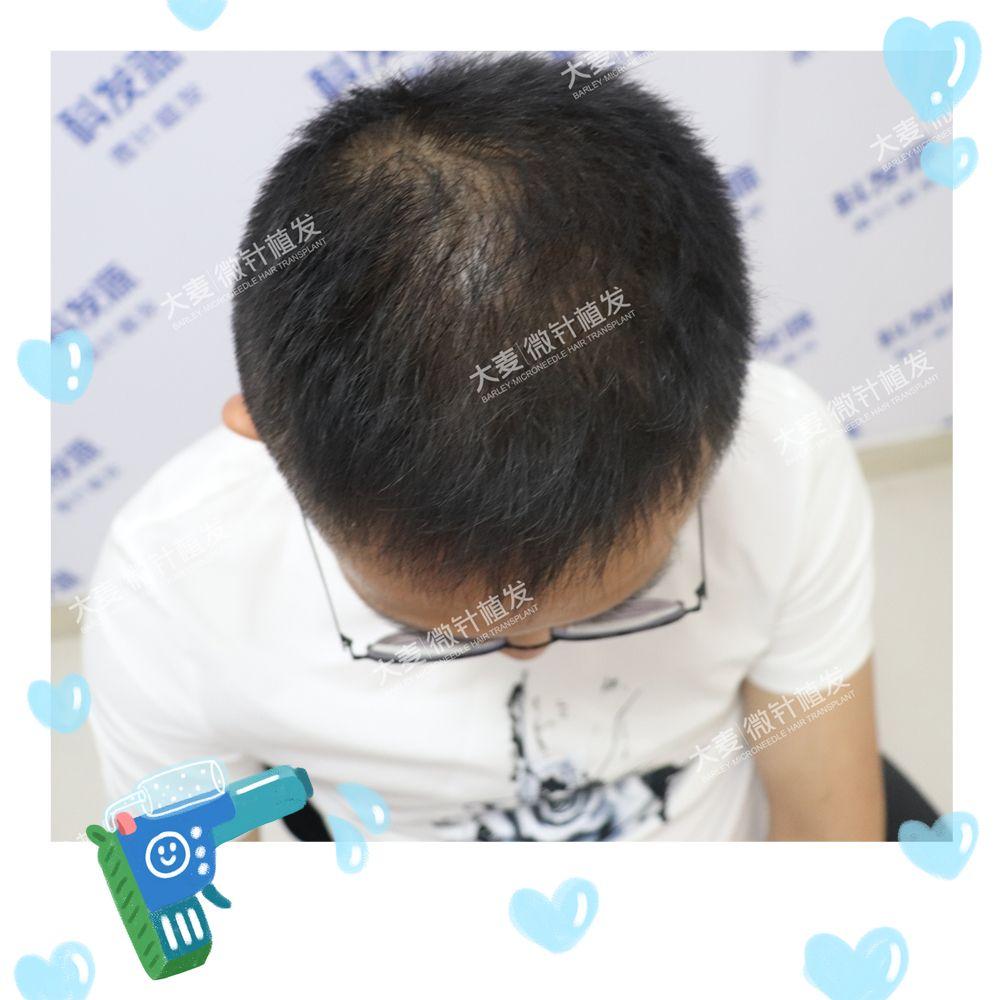 让头发重新回来 项目分类:植发养发 植发 头顶加密种植