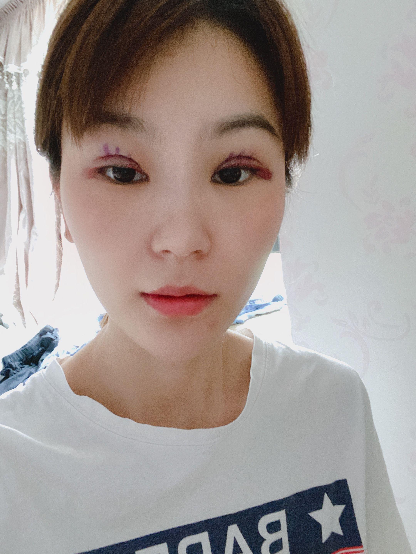 双眼皮术前术后的差距真的很大,说起来术前眼睛也不小,是内双,但相比于现在的双眼皮我还是比较喜欢现在,哈哈哈、、、、刚做完第一天,有些肿胀,伤口有点火辣辣的,但没感觉到疼,效果还是挺不错的,在手术过程中能感觉出医生的细心和耐心,技术很好,很专业!!!期待后期恢复越来越好哦~~~