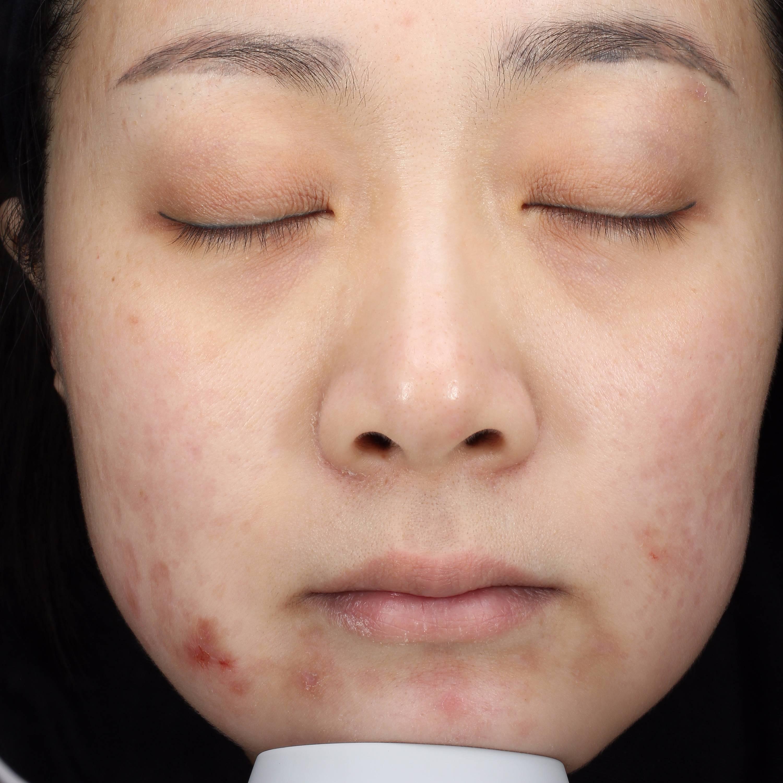 光子嫩肤去痘印收缩毛孔 项目分类:皮肤管理 美白嫩肤 光子嫩肤