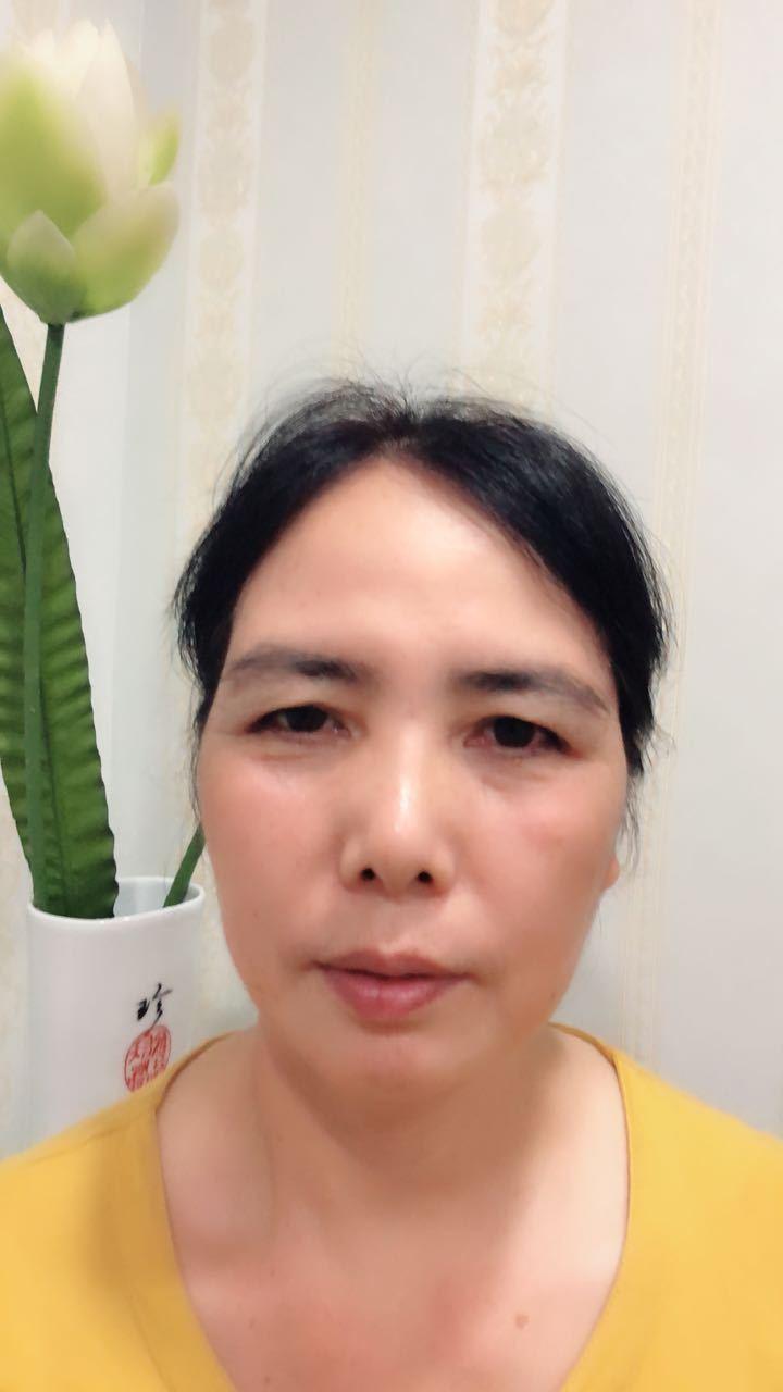 激光祛老年斑 项目分类:皮肤管理 美白嫩肤 彩光嫩肤