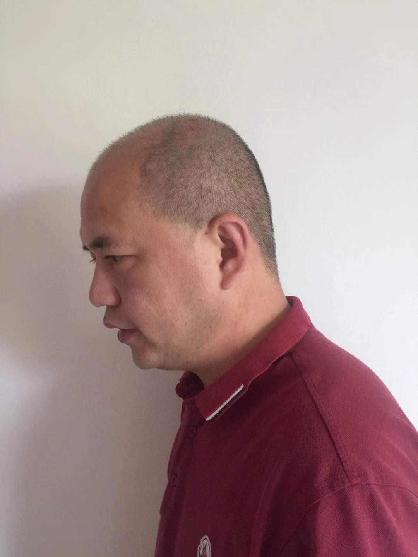 男士头顶加密植发 项目分类:植发养发 植发 头顶加密种植