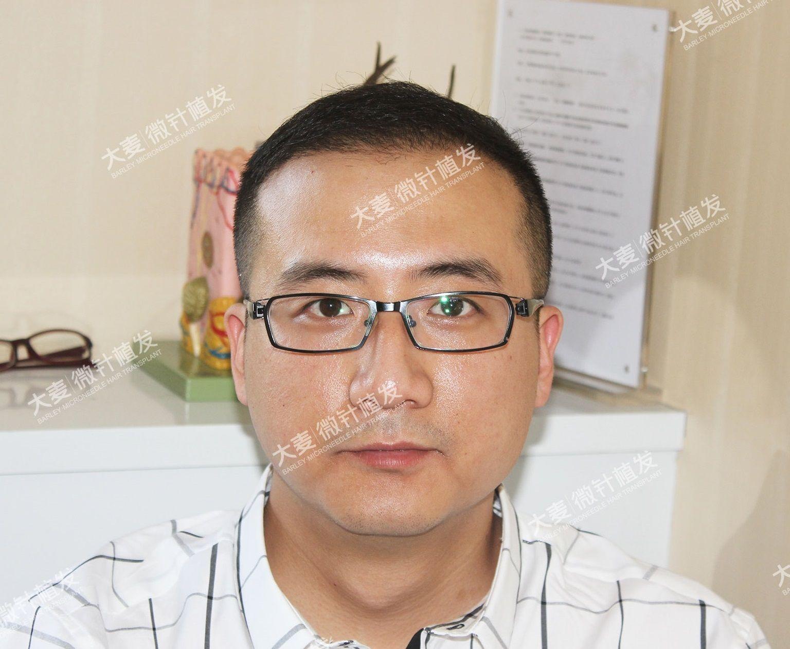 大麦微针植发|头顶加密 项目分类:植发养发 植发 头顶加密种植