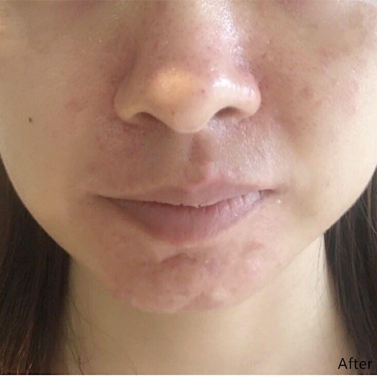 果酸焕肤 皮肤综合美化治疗 项目分类:皮肤管理 果酸焕肤 清洁祛痘