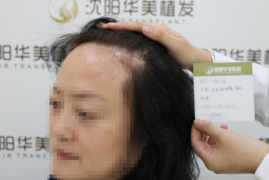 我属于天生发际线比较高,平时用头发遮着倒也不怎么看得出来,一直觉得如果发际线低一些,关注植发比较久了,但是一直没下定决心,这次看我一个朋友做了植发,效果还挺好的,就在他的推荐下,到华美植发医院来做了咨询。因为有朋友推荐的关系,窦院长亲自给我做了发际线形状设计,做了毛囊检测后,预估了大约要植2200个毛囊单位。