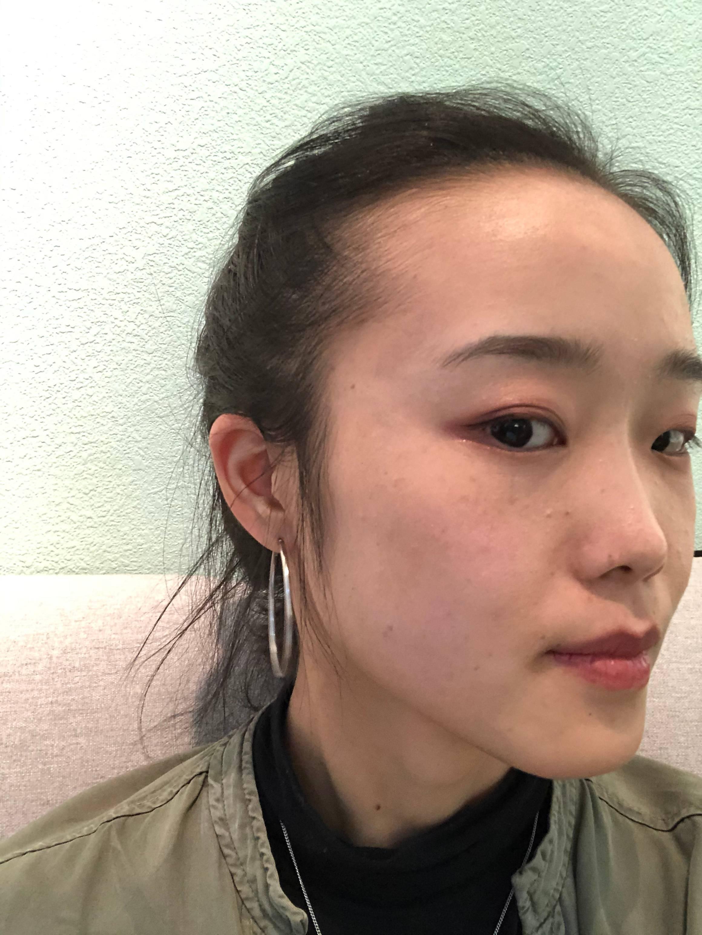 """KO不一""""斑"""" 项目分类:皮肤管理 祛斑祛痣 激光祛斑"""