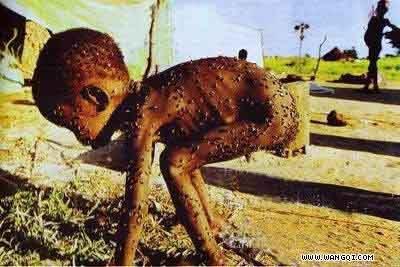 身上落满苍蝇的非洲濒死小孩