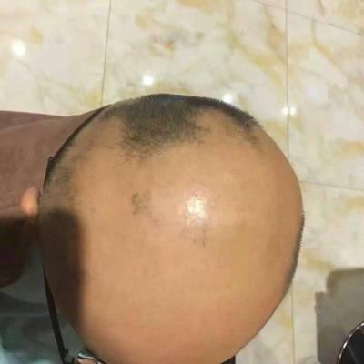 12岁斑秃作品图