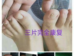 馨靓甲灰指甲甲沟炎跖疣脚气鸡眼护理的图片