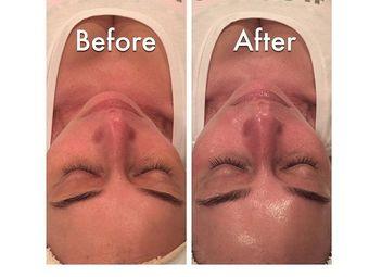 Skin Deep Laser Medspa