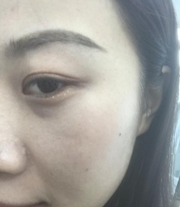 超皮秒+祛斑針 項目分類:皮膚管理 祛斑祛痣 激光祛斑