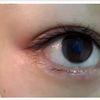 [术后1天] 术后即刻效果,眼睛变得更大更有神,再次温馨提醒做完后在掉痂之前避免沾水,以免影响后期效果(一般做完根据个人情况3-7天掉痂)。