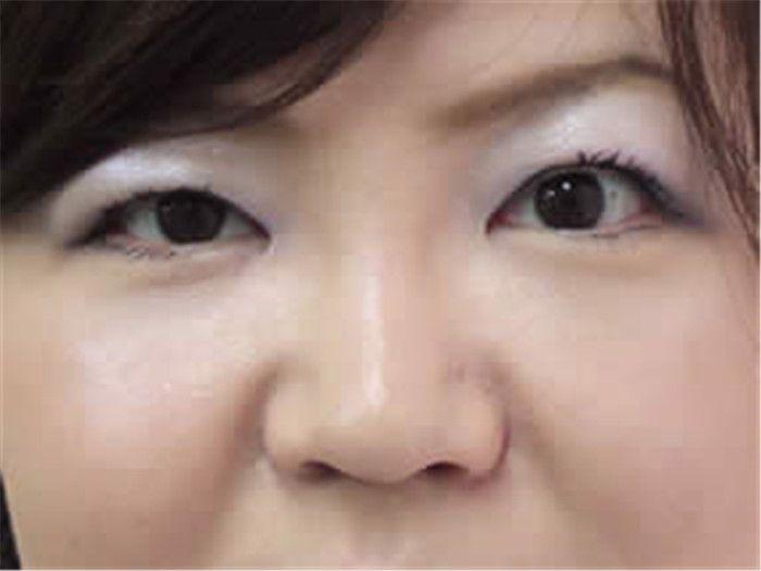 術后2周復診照片,眼睛狀況一天比一天好了