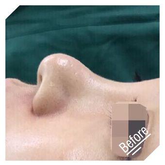 纽菲思鼻综合修复对比