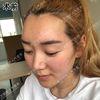 [术后1天] 毛孔粗大、皮肤干燥、皮肤暗黄。