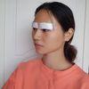 [術后1天] 做完雙眼皮了,來跟大家分享一下我做雙眼皮的術前準備跟術后護理吧。 術前準備:醫用紗布、醫用棉簽、口罩、熱敷眼罩、冰袋、墨鏡、生理鹽水、疤克、氯霉素滴眼液、紅霉素眼膏、一次性洗臉巾 術后護理:當天護理 1術后適度壓迫、冰敷,可防止術后出血、瘀血及過度腫脹,術后當天可以適當休息,避免做長時間低頭動作。 2.術后72小時內腫脹比較明顯,可以冷敷3-4次/天,20-30分鐘/次,頭部盡量抬高,睡覺時半坐位或抬高枕頭,以免眼睛過度疲勞或頭部位置過低而加重傷口腫脹。 3.手術第二天至拆線,盡可能多做睜眼、閉眼動作,可看電視或電腦、讀報等,有利于雙眼皮形成減少腫脹。 4.手術當日傷口會有些疼,但是那種腫脹的疼,我個人的話還是可以接受的,而且也是會隨時間變長而慢慢不疼噠5.術后第二天開始滴眼藥水,大概3-6小時一次,每天4-6次。