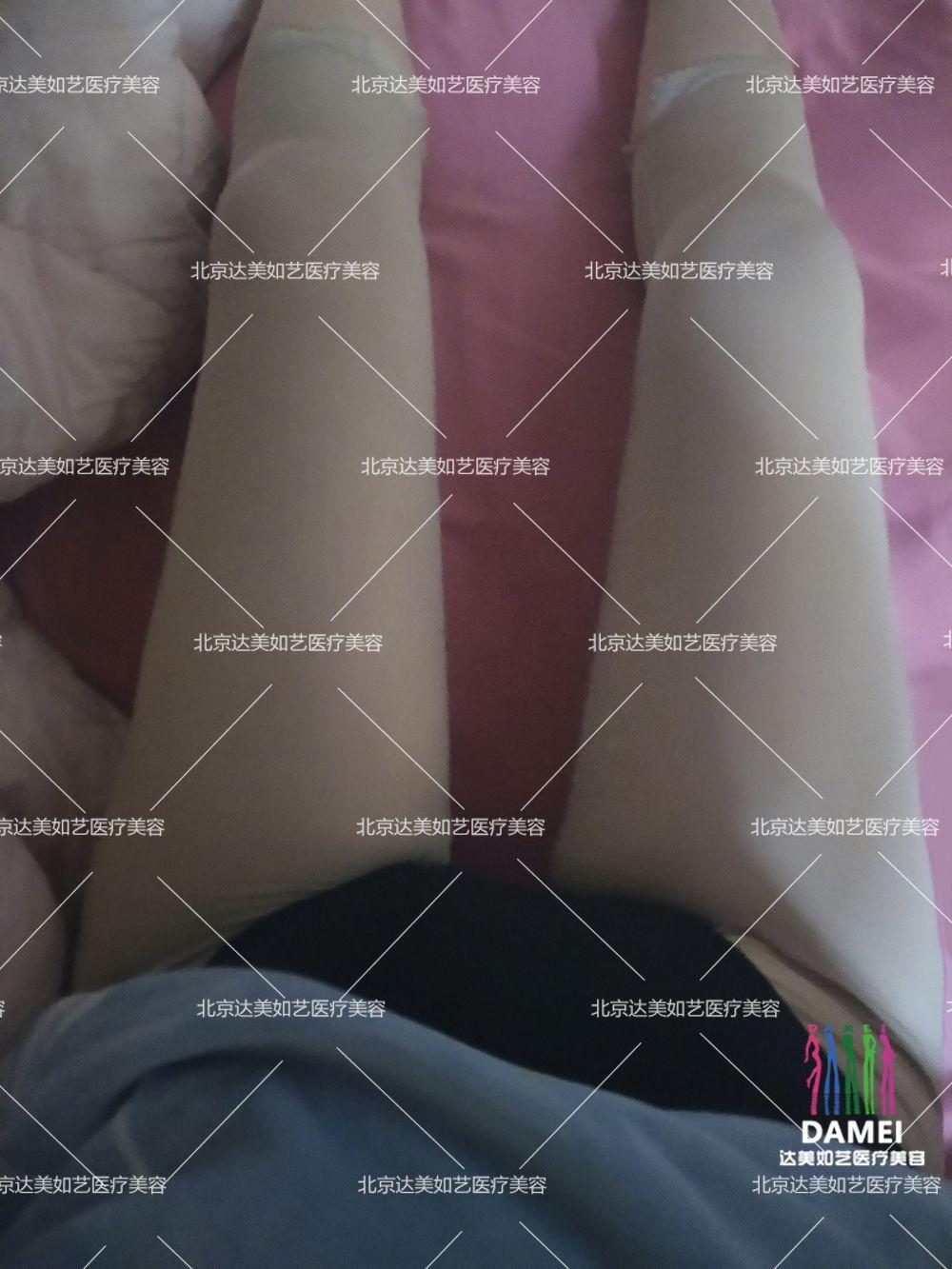 大腿吸脂 项目分类:美体塑形 吸脂