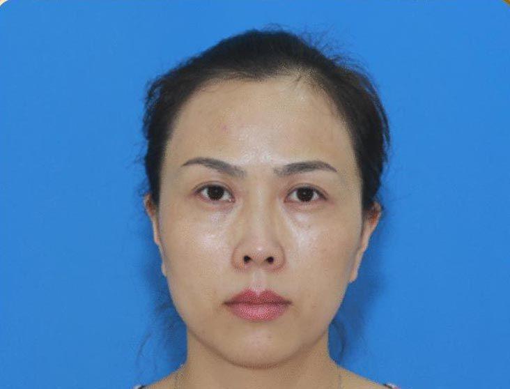 韩式重睑术 项目分类:眼部整形 双眼皮 切开双眼皮