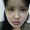 面部吸脂术