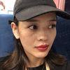 [术后2天] 我是属于那种天生肤色就比较黑的那种,所以脸看起来也很暗沉无光,看起来气色很差,这是第一次做完两天后拍的照片,肤色看起来就好了很多,没有化妆,只图了口红,不然不涂口红太没有气色了,妆可以不花,但是口红不能不涂哈哈哈!