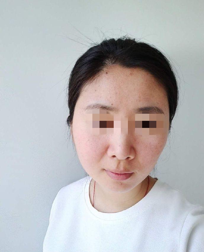 幾次療程下來意外收獲不光痘痘沒有了而且原來臉頰毛孔比較粗大現在變得很細,感覺白了些因為以前卸妝以后皮膚發暗,現膚色很勻稱。