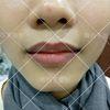 [术后1天] 治疗前,上下唇部颜色浅,需靠口红涂色