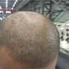 [术后31天] 植完头发一个月了,开始进入脱发期了!看着头发又稀稀拉拉的,心理有些惶恐啊。这不会是都没成活吧!!!给医生打了电话,把照片发给医生了,他说这种情况是正常的。可以看到头上的那些小黑点,后面还是会长出健康的头发的,可以不用担心。
