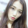 [术后82天] 南京澳玛星光医疗美容—牛奶光美白第4次治疗后1天