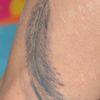 [术后1天] 患者:皮肤文身,染色沉着,使用激光治疗,治疗周期间隔时间2-3个月左右 治疗后:色素被激光爆破,可以见色素变淡,皮肤无破损,无结痂反应