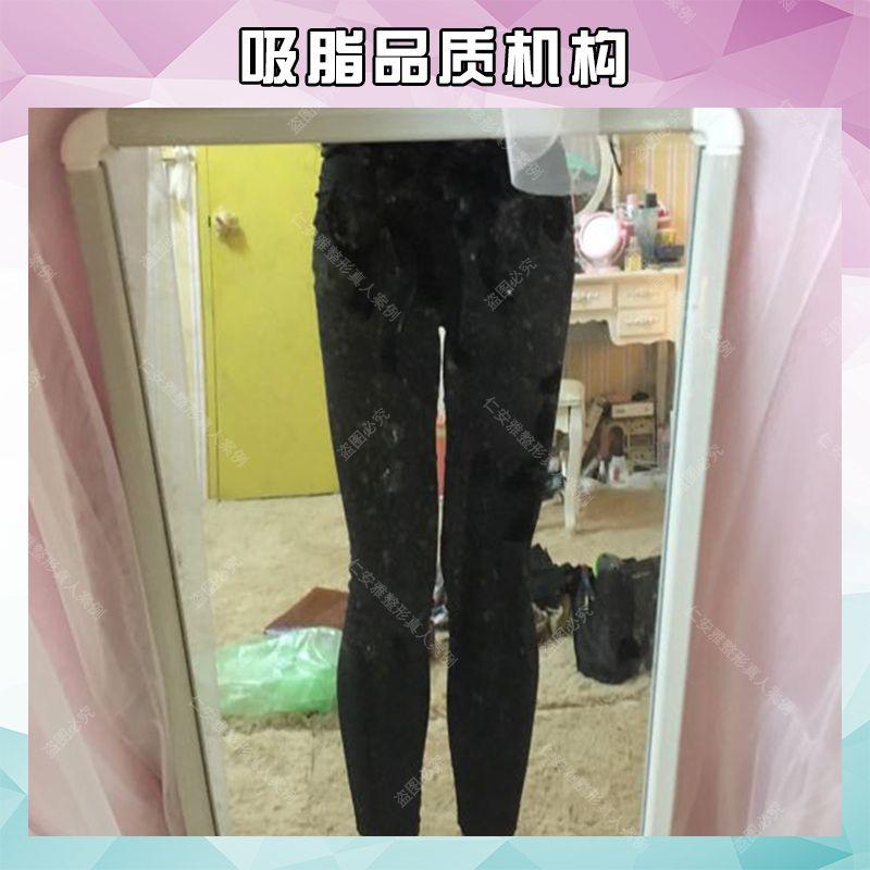 宝丽太大小腿吸脂瘦身塑形 项目分类:美体塑形 吸脂