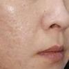 [术后16天] 皮肤变白了,效果一点点呈现,现在皮肤也不长痘了,坚持肤面膜,我今天脸上什么都没抹,包括护肤品,看着还可以吧