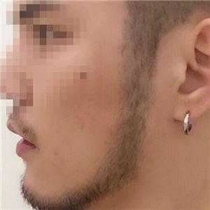 薛先生-种植胡须 项目分类:植发养发 种植胡须