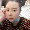 [术后7天] 今天是第7天 我去医院拆了线   脸上还有点肿 右眼还有淤青 但是能出去见人了 今天院长来复查过 说恢复得还不错