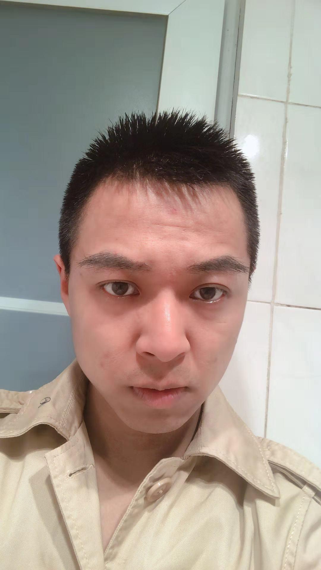 原生纹理眉毛种植 项目分类:植发养发 种眉毛