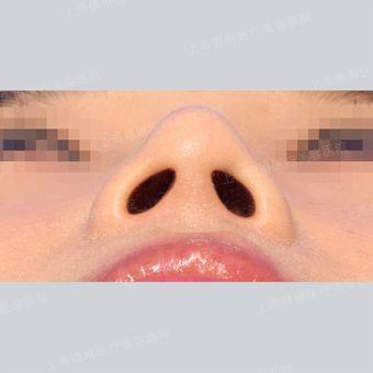 韩籍院长宋鸿植-鼻综合