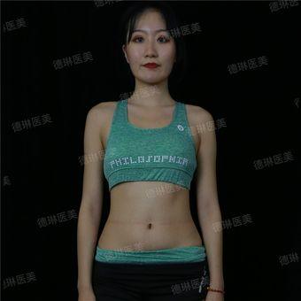 德琳医美朱焱医生-酷塑瘦腰腹