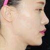 [术后40天]  瘦脸针不是当场打完就瘦了,没这么快,总有一个药物吸收的过程,2—3周瘦脸针的效果会逐渐显现,1个月的时候效果非常好。注射一次维持时间的话,基本是8-12个月。在此给大家一个小tips:第一次注射瘦脸  针的妹子,在3个月再注射一次(剂量与第一次注射相同)连续注射三次,这样效果非常好。